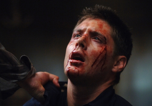 Dean Winchester Bloody